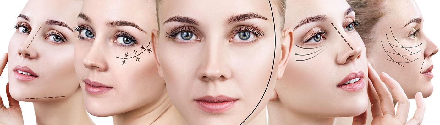 ansigtsløft, kosmetisk akupunktur